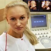 Грачева Анна Витальевна, врач УЗД
