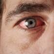 покраснение глаза и слезотечение как симптомы конъюнктивита