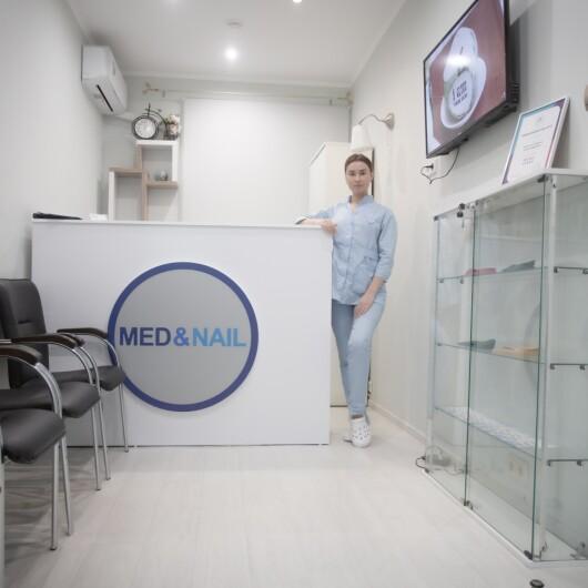 Клиника MEDNAIL, фото №3
