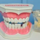 6 мифов о здоровье зубов