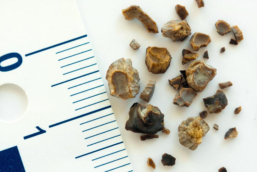 Камни в почках (нефролитиаз)